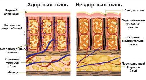 Почему возникает целлюлит